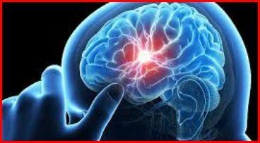 Karnosiini suojaa aivoja vaikuttamalla suolistogeeneihin - Terveysuutiset - Tohtori Tolonen