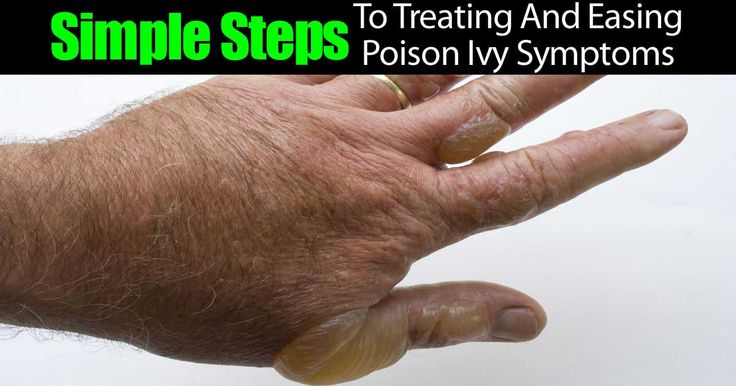 simple-steps-treating-poison-ivy-73020151527