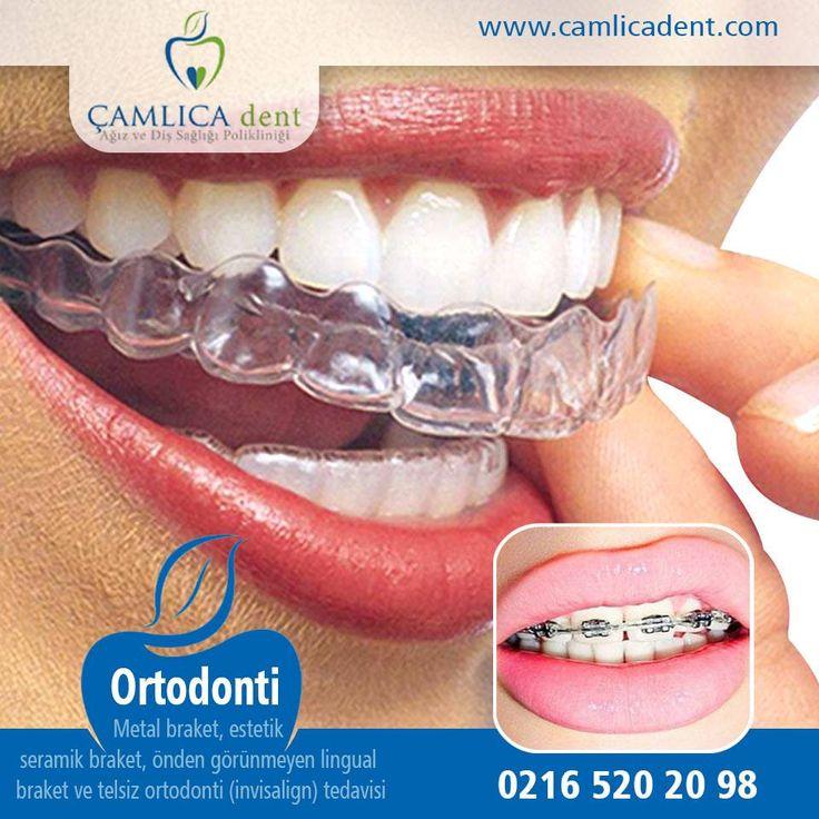 ÇAMLICAdent Ağız ve Diş Sağlığı Polikliniği www.camlicadent.com | 0216 520 20 98