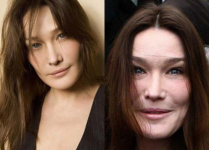 New And Improved! The Top 15 Celebrity Plastic Surgeries ...