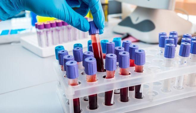 Milyen rövidítések jelzik a leleten a tumormarkereket? Melyiket figyeljük vér-, melyiket a vizeletlabor eredményen? Mutatjuk!