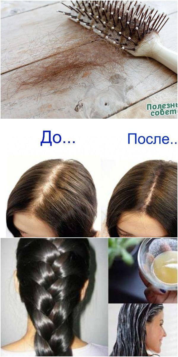 Maska Protiv Vypadeniya Volos Hair Hacks Beauty Recipe Hair Beauty