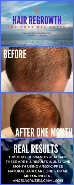 a solution to thinning hair that works
