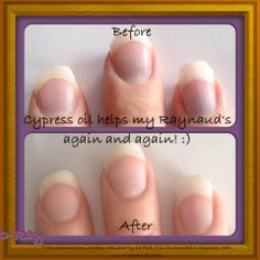 pictures of raynaud's disease - Google Search