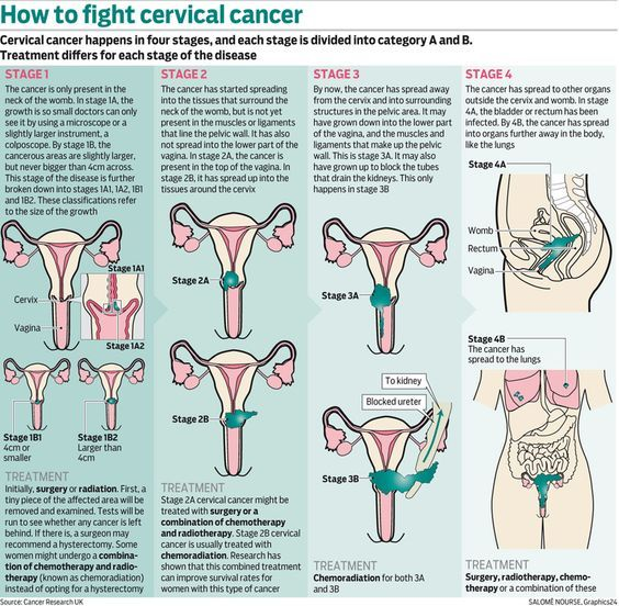 Image result for cervical cancer stage 1b2