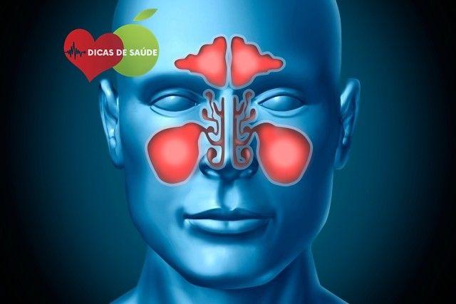 Sinusite - O que é, Causas e Tratamento | Dicas de Saúde