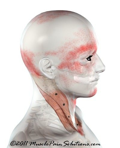 Sternocleidomastoid muscle - sternal branch. The SCM can cause a variety of symptoms and is the only muscle that creates such wide spread problems. Cervical instability can cause this muscle to overdevelop creating complex problems to unravel. #EhlersDanlosSyndrome Awareness #EDS