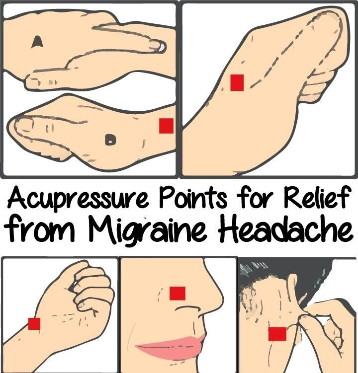 Acupressure Points for Relief from Migraine Headache # ...