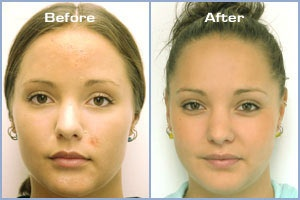 A beautiful girl with a wonderful success story from using ZENMED products.  Do you have a before and after picture? Please share!  #ZENMED