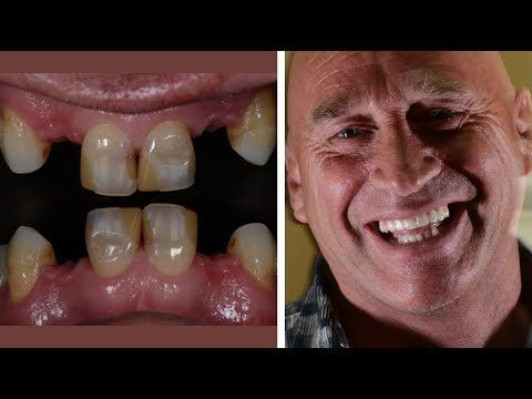 At LS Dental Clinic www.lsdentalcostarica.com we offer you the best dental work and prices in paradise Coco Beach Costa Rica. Natural looking dental Implants, Bridges, Crowns, All on Four Dentures