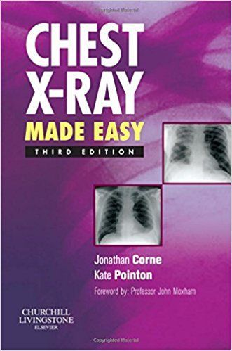 chest x ray made easy pdf free download file size 6 40 mb file