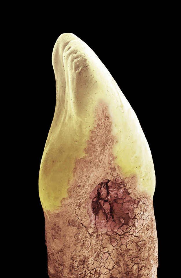 Look away now if you're squeamish. This is a tooth with a cavity. Microscope images