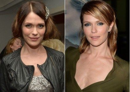 Katie Aselton Plastic Surgery Before and After - https://www.celebsurgeries.com/katie-aselton-plastic-surgery-before-after/