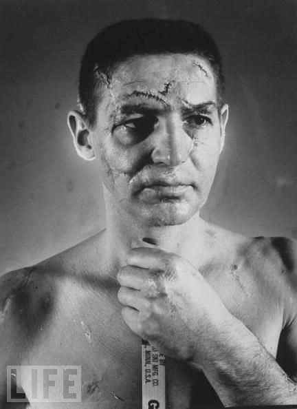 The face of an NHL goalie Terry Sawchuk before masks became standard game equipment...