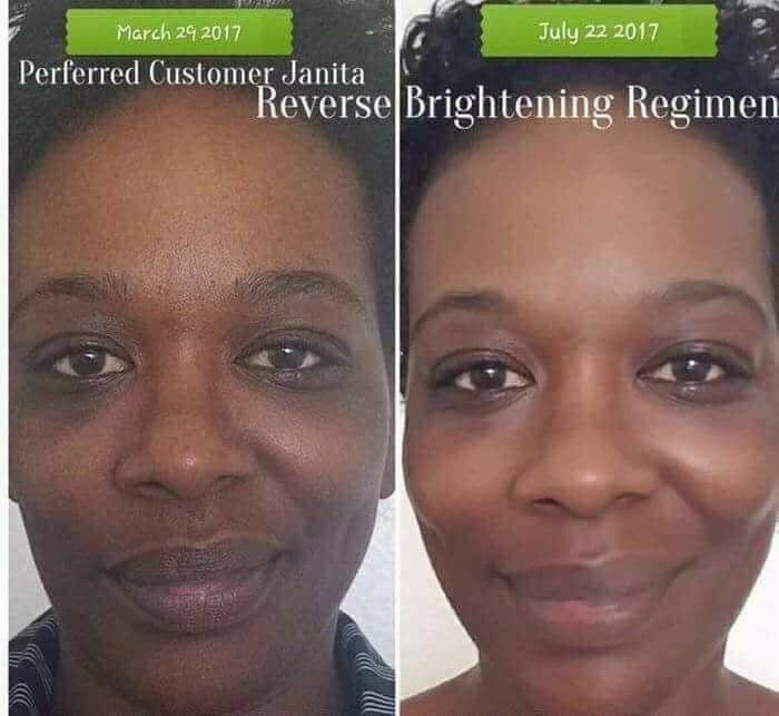 Gorgeous Skin Transformation Sun Exposure And The Environment Are Key Contributors To Dul Rodan And Fields Regimen Rodan And Fields Reverse Aging Skin