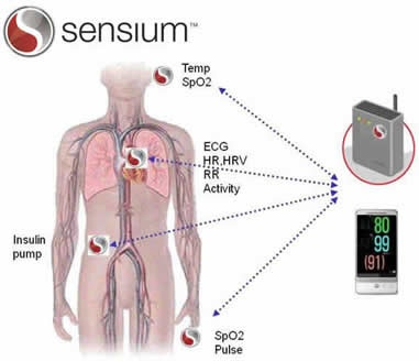 Sensium Continuous Wireless Body Monitoring System
