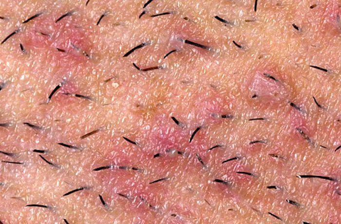 Eliminar los pelos encarnados Un pelo encarnado puede producir una protuberancia elevada, se parecen a una espinilla y son de color rojo. Aveces pueden tener pus dentro, también causan hinchazón, inflamación, enrojecimiento, irritación y dolor en la zona....