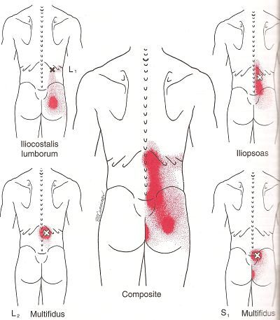 Learn about the most common low back pain trigger points and how you might prevent and treat them