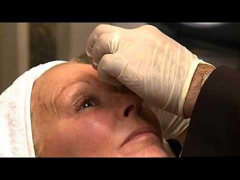 Chemica Brow Lift using Botox - MyFaceMyBody