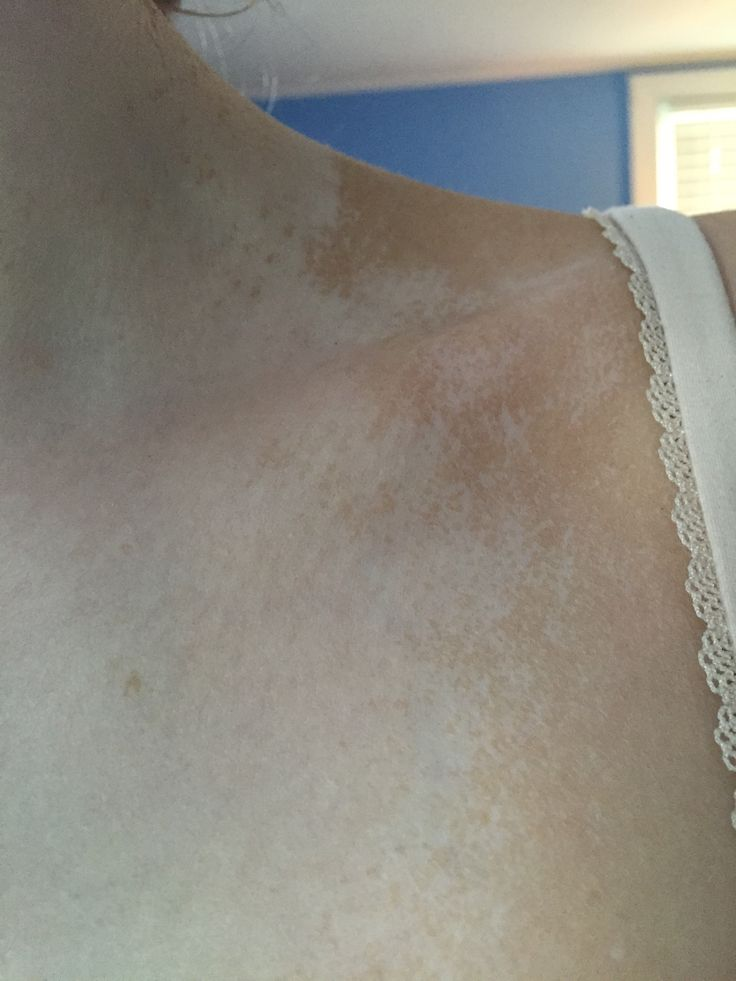 Remove your spray tan in three super EASY steps... Rub egg