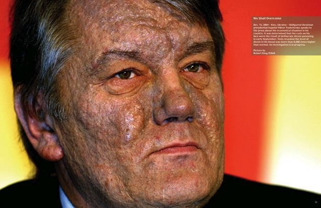 We Shall Overcome - Dec. 15, 2004 - Kiev, Ukraine - Disfigured Ukrainian presidential hopeful Viktor Yushchenko speaks to the press about the economical situation in his country. It was determined that the cysts on his face were the result of deliberate dioxin poisoning in early September. Tests revealed the level of dioxin in his blood was more than 6,000 times higher than normal. An investigation is in progress. Picture (c) Robert King/ZUMA Press