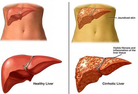 does steroids cause liver damage