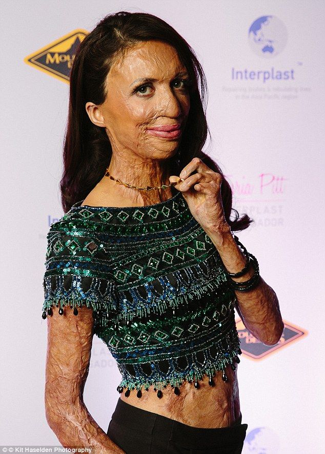 Determined: Bushfire victim Turia Pitt acknowledges she will never erase every scar left after she was trapped in a bushfire in Western Australia  but says she is 'not opposed' to more operations