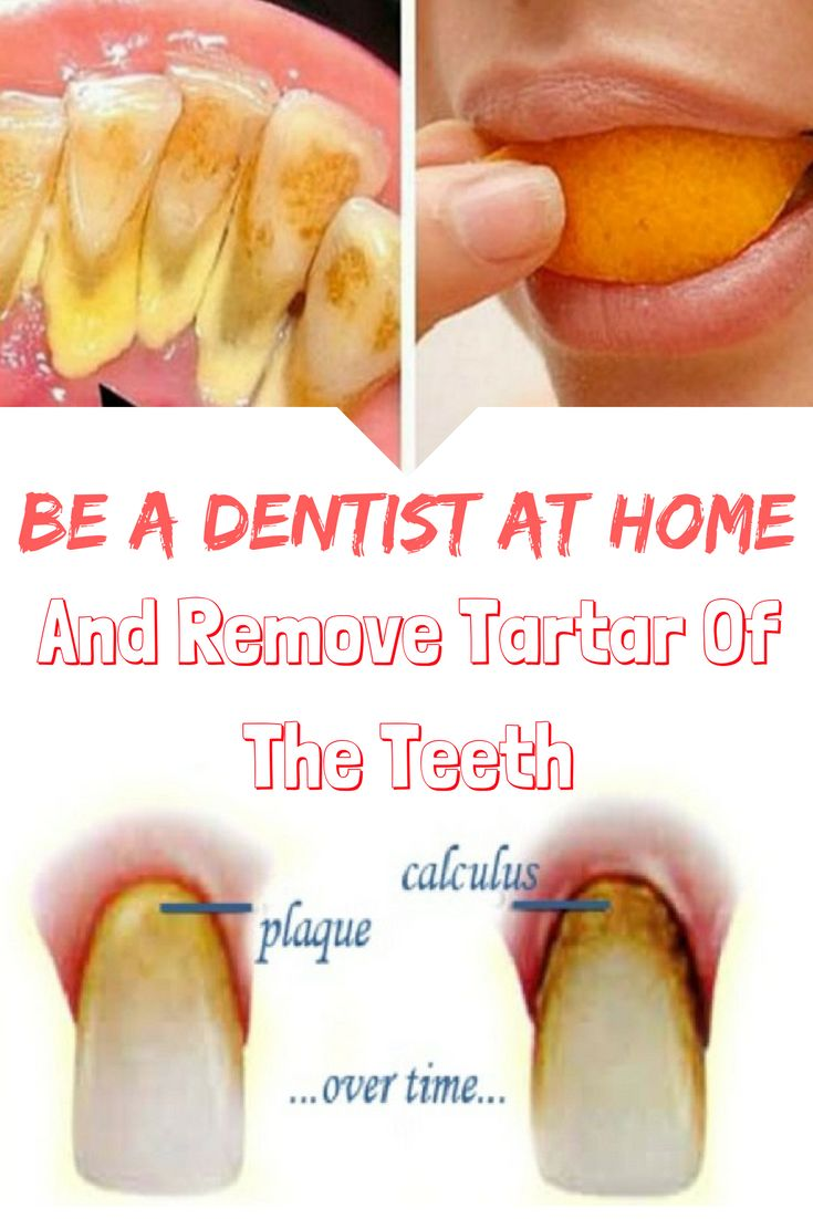 BE A DENTIST AT HOME AND REMOVE TARTAR OF THE TEETH