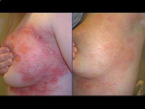 """Psoriasis Revolution - Psoriasis Revolution - Psoriasis Revolution - 1 weird trick that forces your body to cure psoriasis 
