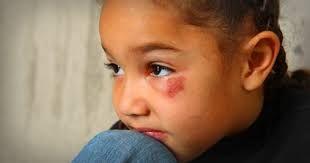 Image result for abuse against children