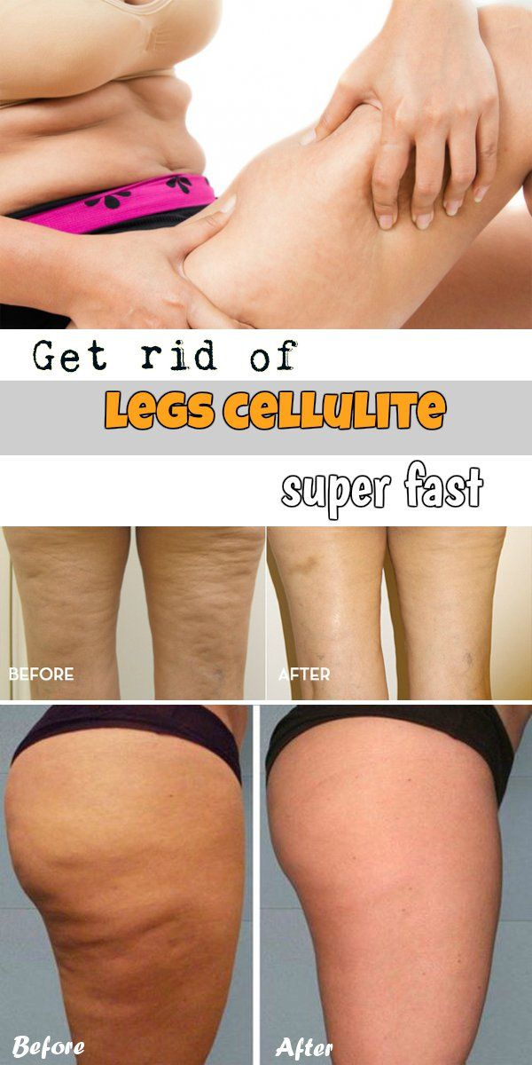 "Cellulite on the legs is one of the most common forms of this disease and many women struggle daily with the appearance of unsightly ""orange peel"". See how to get rid of cellulite on legs super fast in just a few easy steps. Step 1: Get rid of enlarged fat cells Cellulite on the legs…"