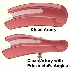 Introduction to Prinzmetal's Angina