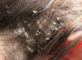 Dandruff is a very annoying condition faced by most of us today. This article gives you all the tips for dandruff free hair that can be easily followed & maintained.