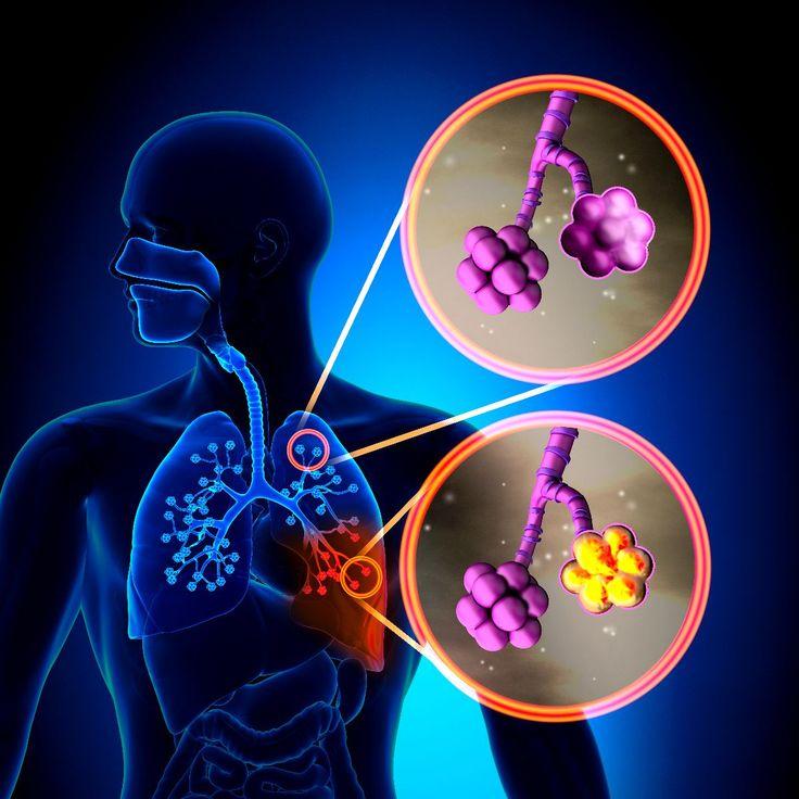 Publican resultados del Estudio en Adultos sobre la Inmunización en la Neumonía Adquirida en la Comunidad, CAPiTA - http://plenilunia.com/prevencion/publican-resultados-del-estudio-en-adultos-sobre-la-inmunizacion-en-la-neumonia-adquirida-en-la-comunidad-capita/34048/