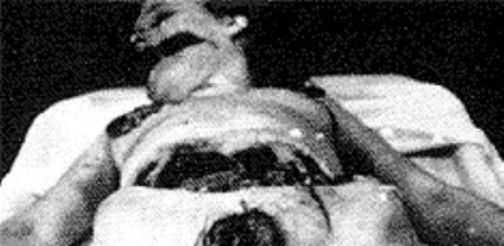 Autopsy   PIECES OF ELIZABETH: An Ode to the Black Dahlia
