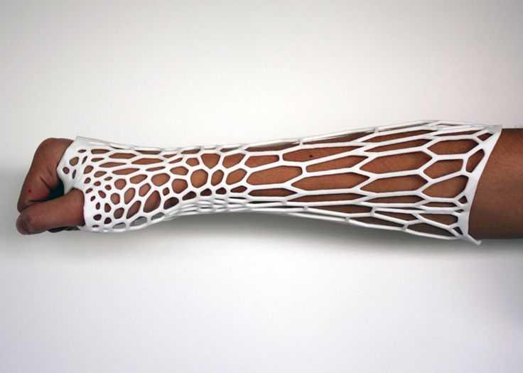 The Cortex cast prototype by designer Jake Evill heals fractured bones. The form of the cast varies with each case: 3-D scans are taken of the injury and used to determine the geometry and the distribution of the cast's voronoi cells. The cells are denser in areas where the fracture is worse, requiring more support