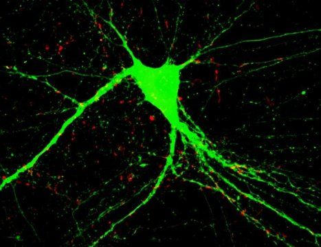 Repairing the brain: Two genes unlock potential for treatment of schizophrenia -- ScienceDaily