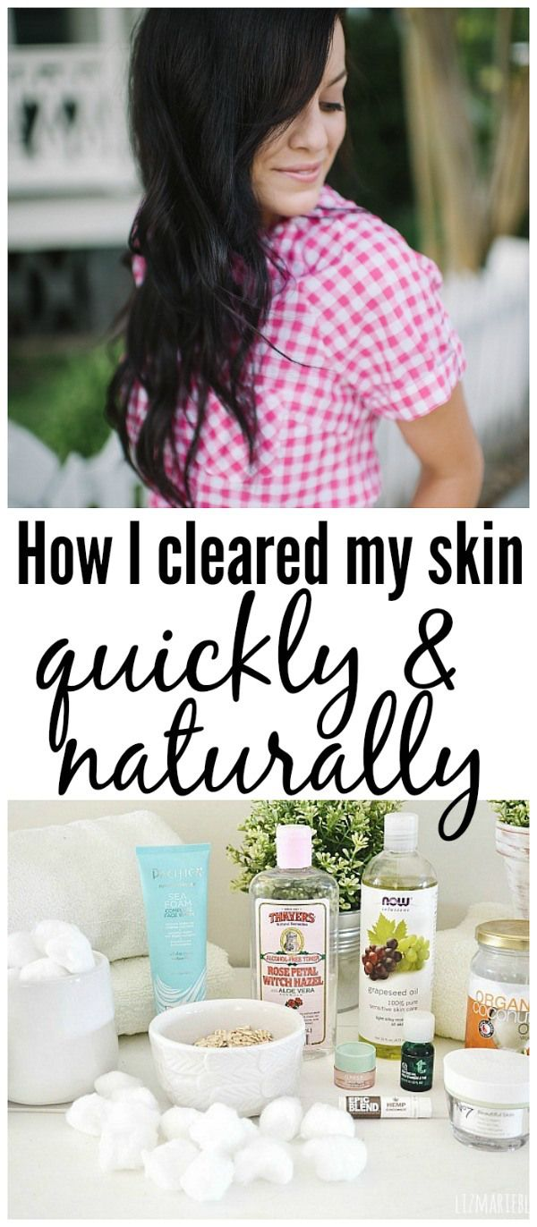 """How I healed my skin the natural way!"""