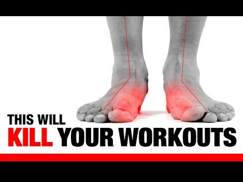 Flat Feet!! (EXERCISES TO FIX THEM!) - YouTube - This explains every injury I've ever had!