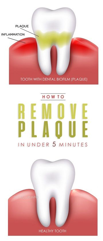 How to Remove Plaque in Under 5 Minutes -