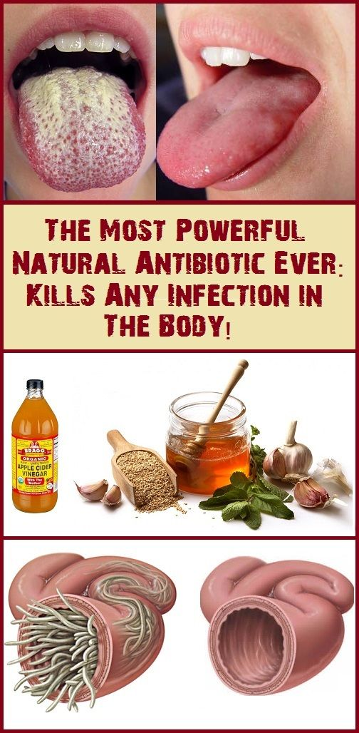 Kill Any Infection in Your Body! This is the Strongest Natural Cure Ever!