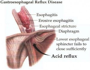 Home Remedies For Gerd - Natural Treatments & Cure For Gastroesophageal Reflux | Search Home Remedy