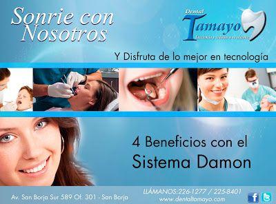 Ortodoncia. Sistema Damon lo mejor de Lima http://dentaltamayolima.blogspot.com/2013/07/DentistaLima.html