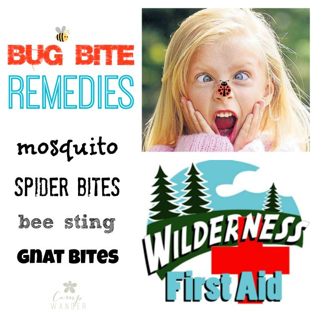 Bug Bite Remedies!