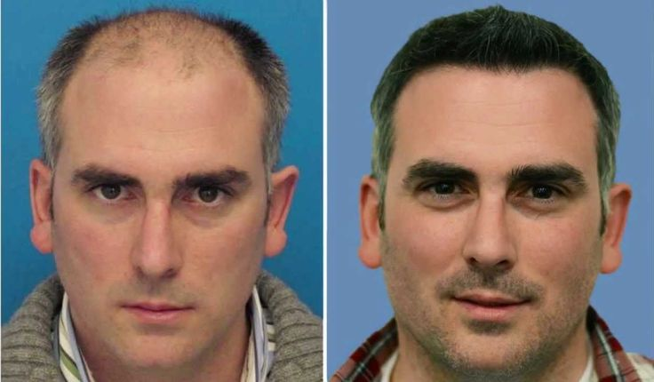 Critical scalp scars, swelling, or irritation after hair transplantation.