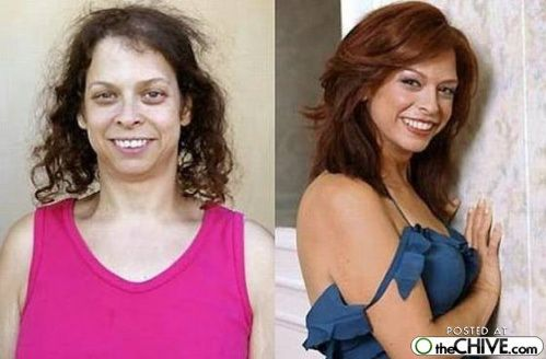The most dramatic plastic surgery changes ever