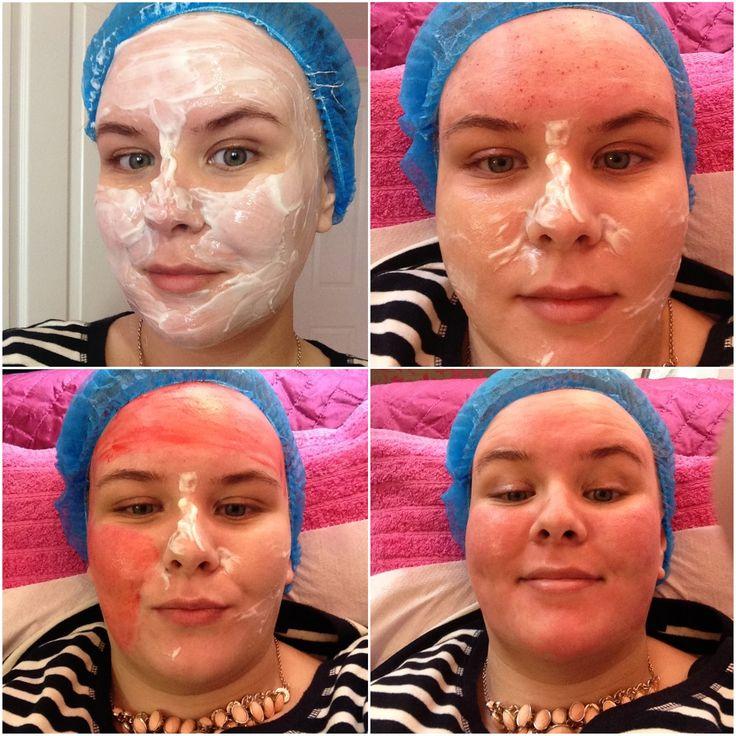 Anti Aging Skin Care Reviews
