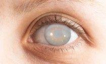 Grauer Star durch Cholesterinsenker (Statine)