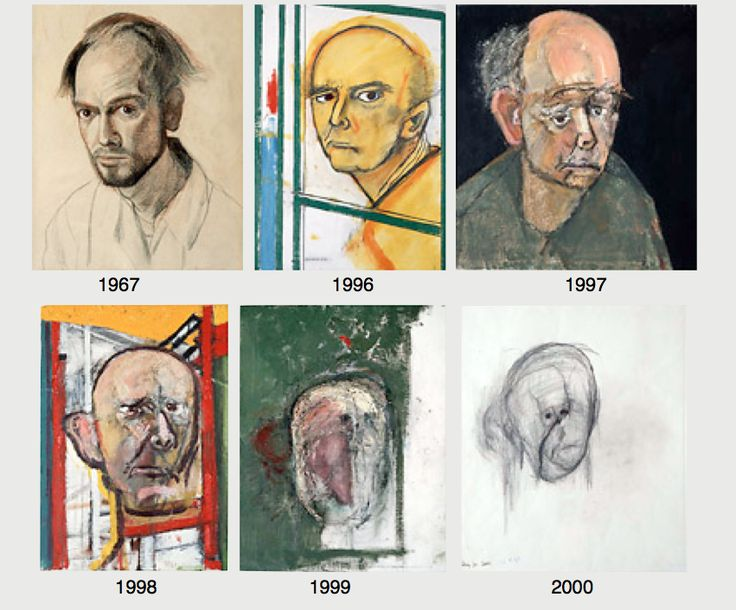 Self portraits by William Utermohlen (UK), and artist with Alzheimer's whose painting maps the progress of his art as the diseased progressed, from a figurative to minimalist style. Image description: two rows of three dated self portraits, starting with a detailed figure study of the young artist in 1967 and moving through increasingly abstract images to a minimalist blurred face in 2000.