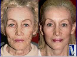 Look 10 years younger with Luminesce
